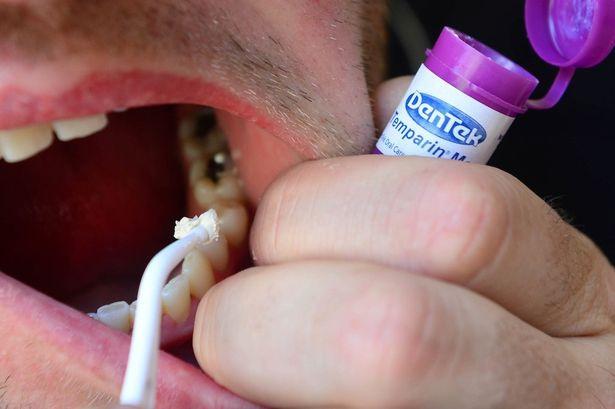 Így tömheted be magadnak a lyukas fogat!