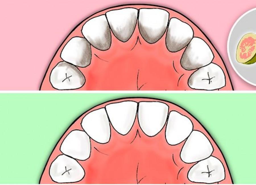 Egyszerű tipp, hogy megakadályozd a fogkőképződést, az ínybetegségeket és a szuvasodást