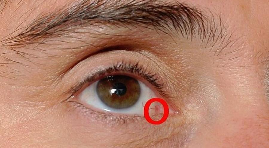 Szemészhez ment, mert azt hitte romlik a szeme. Ledöbbent, amikor megtudta mi a baja!