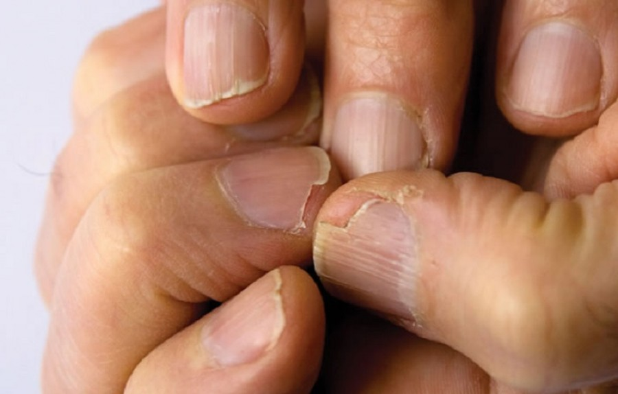 Ez okozhatja a hajhullást és a körmök gyengeségét