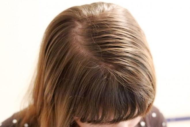 Zsíros a hajad, és 2 naponta mosod? FELEJTSD EL! Egyszerűen és olcsón megoldódik a problémád!