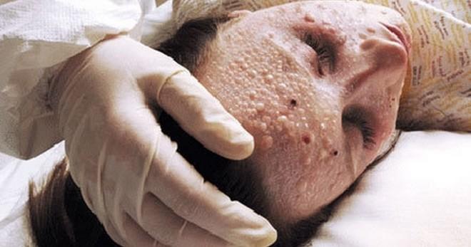 Oroszországban vészharangokat kongatnak a tudósok: óriási járvány indulhat el!