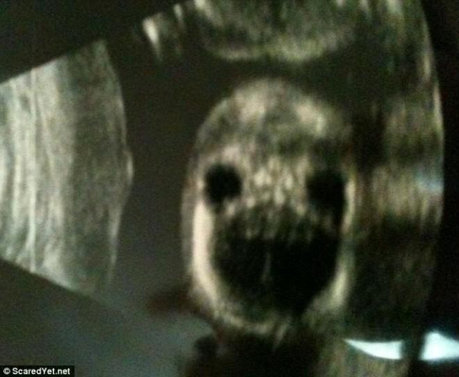 6 rémséges ultrahang fotó, amelyek láttán a szülők elborzadtak