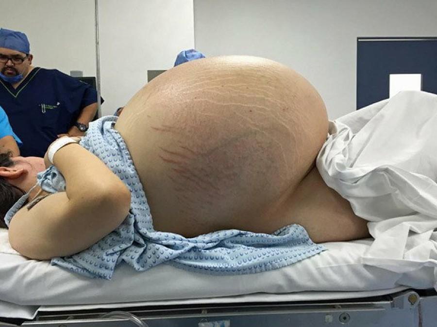 Senki nem tudta miért ilyen nagy a hasa a fiatal nőnek. Azt gondolták ikreket vár...