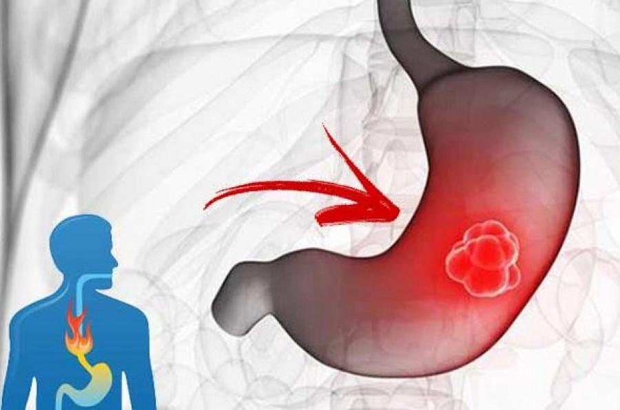 A gyomorrákot jelző kezdeti tünetek, amelyet soha ne hagyjuk figyelmen kívül!