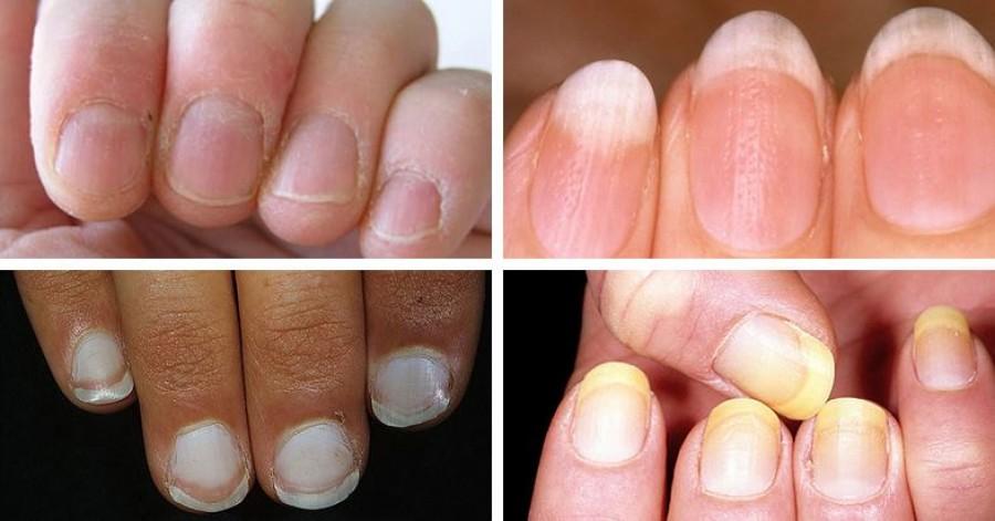 Ezek a leggyakoribb betegségre utaló jelek a körmön