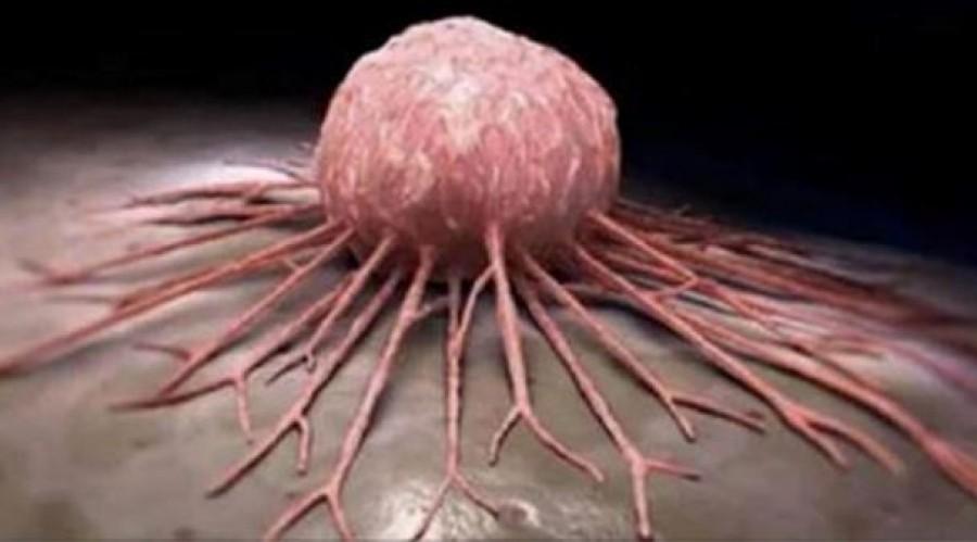 Minden onkológusnak közölni kellene ezt a pácienseivel